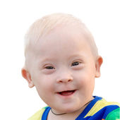 Little baby boy with Down syndrome smiling — Stock Photo