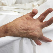Arthritic Hand - Foto Stock