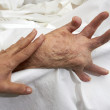 Stock Photo: Arthritic Hand