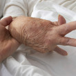 Arthritic Hand — Stock Photo #10870835