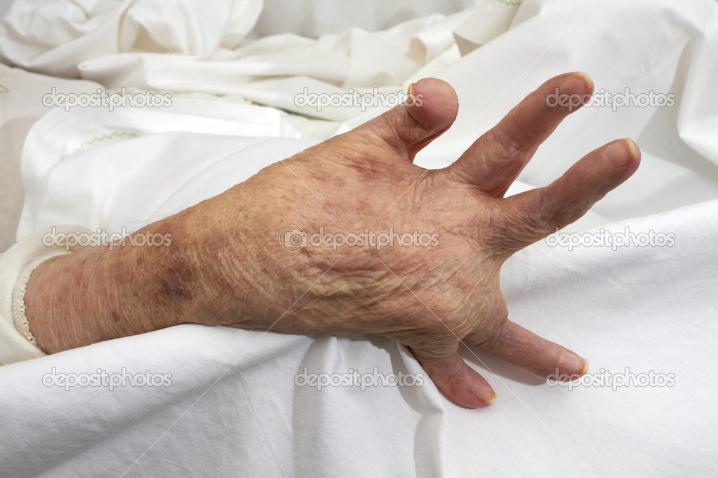 Hand of an elderly woman by arthritis, rheumatism, osteoarthritis — Stock Photo #10870685