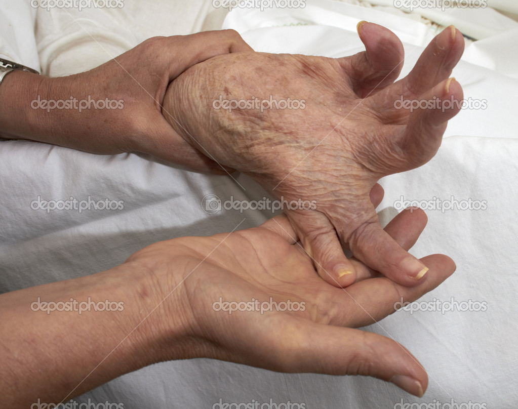 Comparison of healthy adult hands fisted older person affected by arthritis, rheumatism, osteoporosis. — Stock Photo #10870698
