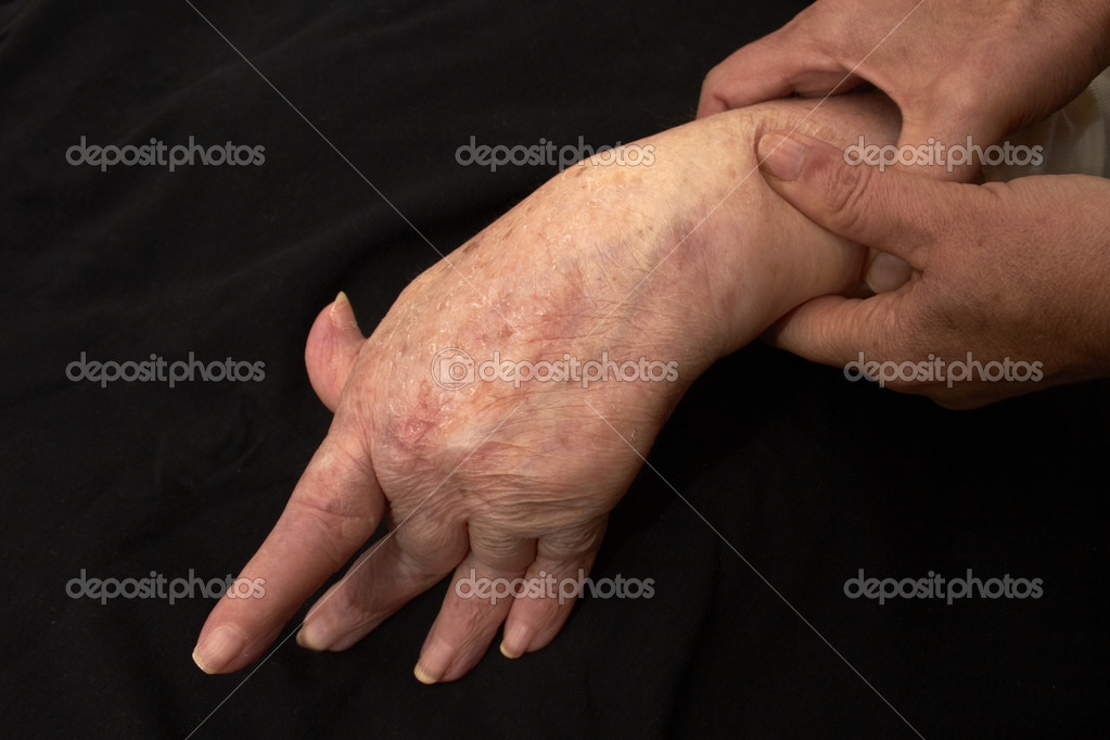 Hand of an elderly woman by arthritis, rheumatism, osteoarthritis shot on black — Stock Photo #10870751