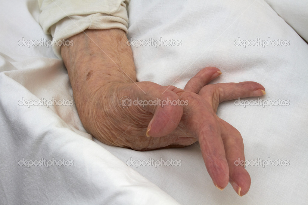 Hand of an elderly woman by arthritis, rheumatism, osteoarthritis — Stock Photo #10870824