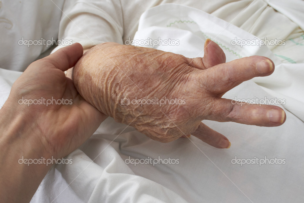 Hand of an elderly woman by arthritis, rheumatism, osteoarthritis — 图库照片 #10870835