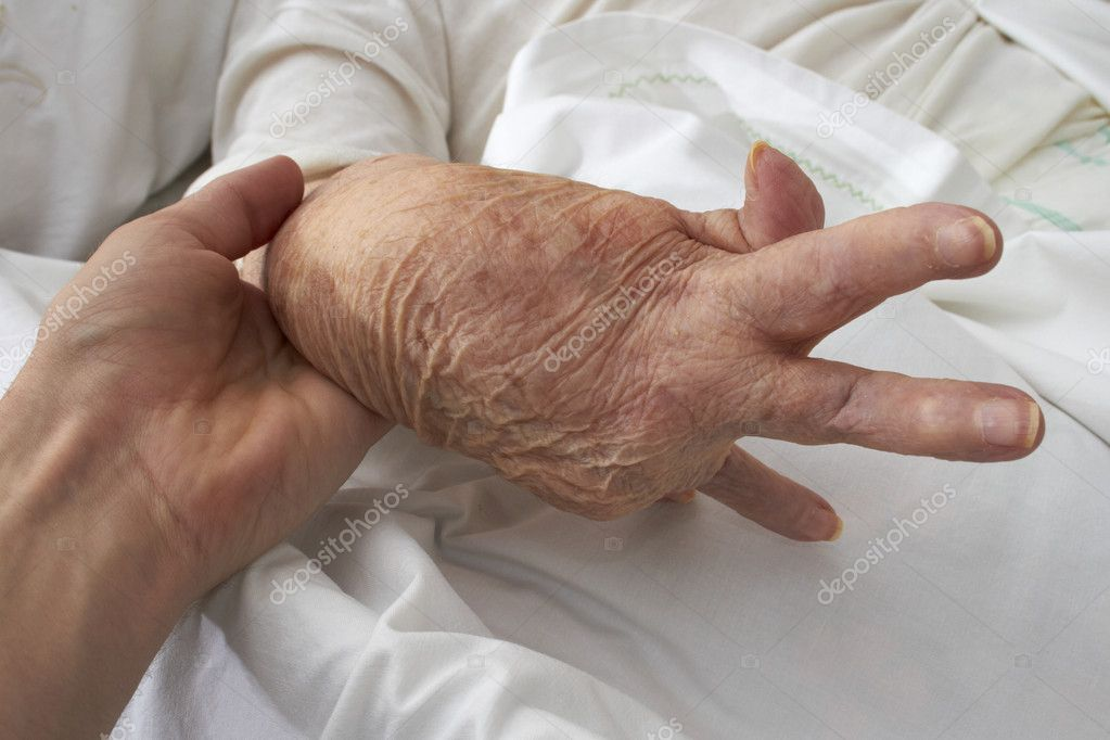 Hand of an elderly woman by arthritis, rheumatism, osteoarthritis — Stockfoto #10870835