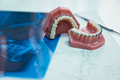 Orthodontic — Stock Photo