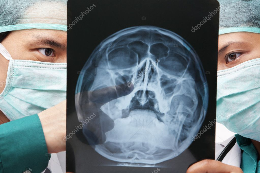 Two Asian surgeon discuss over skeleton roentgen between them — Stock Photo #11035523
