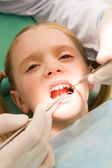 Inspection of oral cavity — Stock Photo