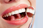Caries — Stock Photo