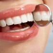 Close-up of patient's open mouth — Stock Photo