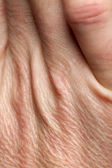 Close-up of human skin on hand — Stock Photo