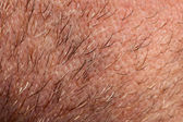 Close-up of human skin and hair on neck — Stock Photo