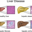 Stock Vector: Liver Disease with micrograph
