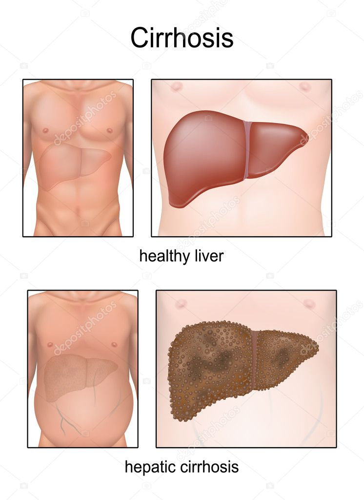 Cirrhosis. Liver disease illustration with liver condition, swelling belly symptom and comparison between healthy liver and cirrhotic liver. This is eps 10 vector file.   Stock Vector #11172372