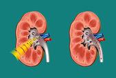 Lithotripsy in kidney stones — Stock Vector