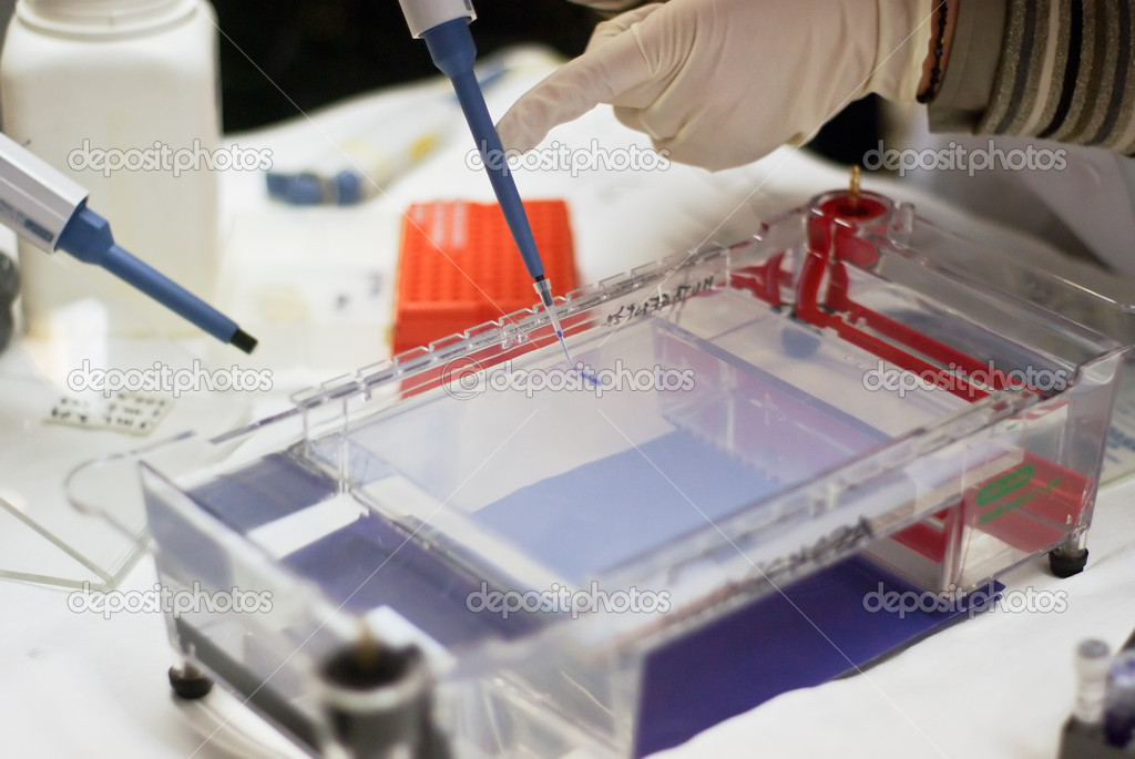 Loading a sample into a gel for electrophoresis  Stock Photo #10825233