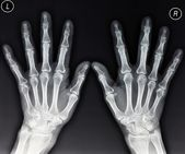 Hands X-ray — Stock Photo