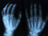 X-ray. — Stock Photo