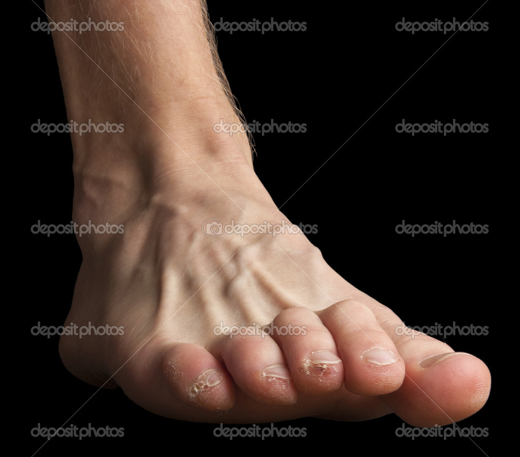 A human foot with hurted toes. Skinning skin and broken blisters and one blood blister. — Stock Photo #11944383