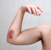 Scraped elbow - 5 days after accident. — Stock Photo