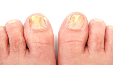 Toenails infected with a fungus
