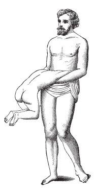 Fig. 600. Twin reversed arterial perfusion, vintage engraving.