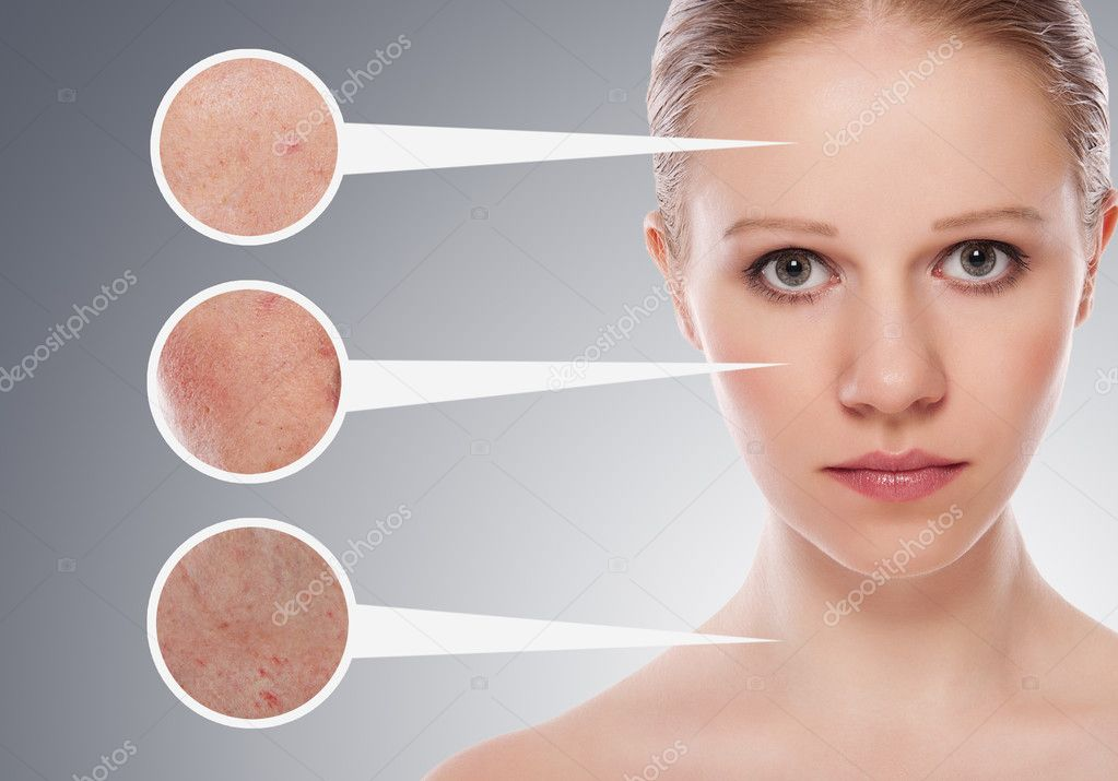Concept skincare. Skin of beauty young woman before and after th