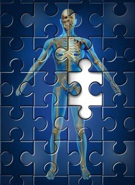 Human Skeleton Disease