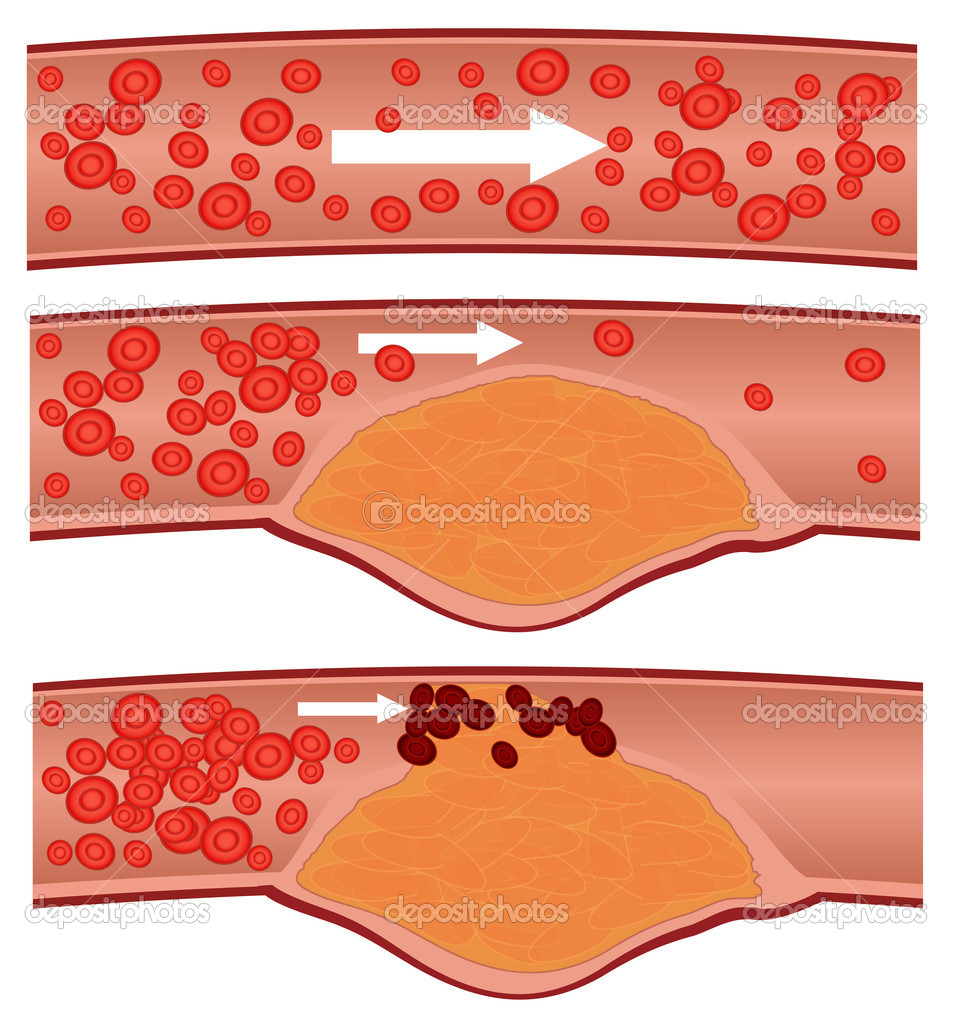 Cholesterol plaque in artery (atherosclerosis)