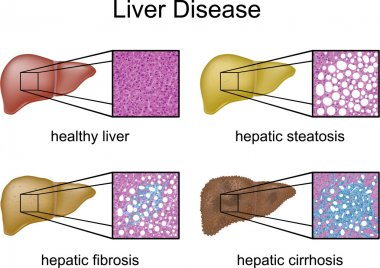 Liver Disease with micrograph