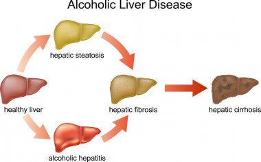 Alcoholic Liver Disease.