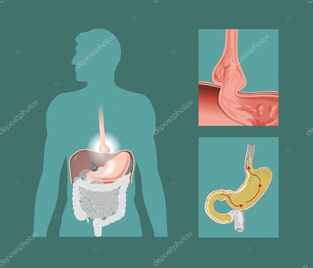 La hernia se como que hiatal y cura es
