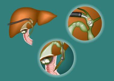 LIVER gall bladder