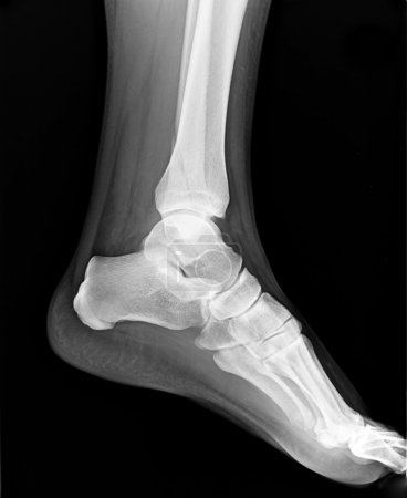 Left foot MRI with toes - X-ray