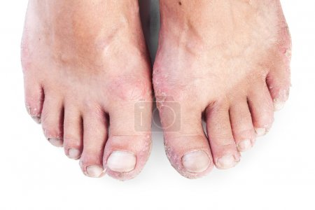 Two male feet with eczema isolated on white background