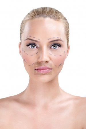 Woman whose face is marked with lines for facial cosmetic surger