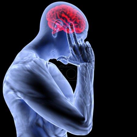 Photo pour Un homme avec un mal de tête sous rayons x. - image libre de droit