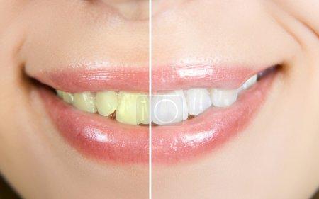 Photo pour Dents de femme avant et après le blanchiment - image libre de droit