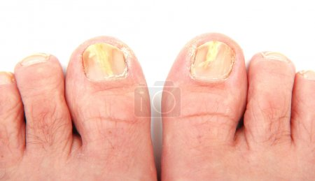 Toenails infected with a fungus...