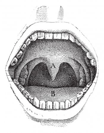 Illustration for Fig. 182. Illustration of the inside of a human mouth, vintage engraved illustration. Usual Medicine Dictionary by Dr Labarthe - 1885. - Royalty Free Image