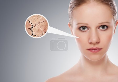 Photo for Concept of cosmetic effects, treatment and skin care. face of young woman with dry skin - Royalty Free Image