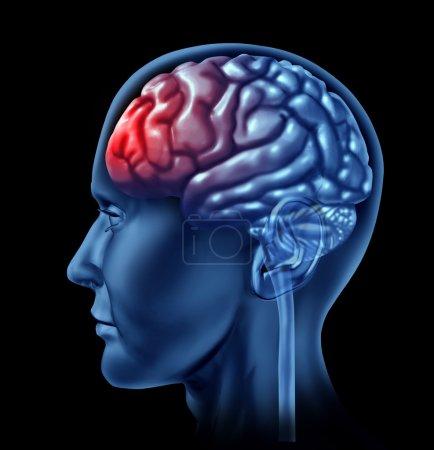 Migrain Concept