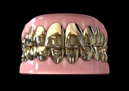 Golden Gangster Teeth And Gums