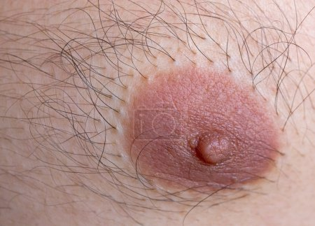 Closeup of caucasian man left nipple with hairs...