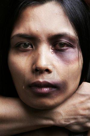 Photo pour Femme victime de coups et blessures, concept de violence conjugale - image libre de droit