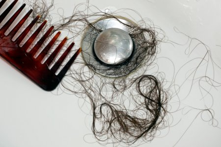 Hair loss after washing of the head