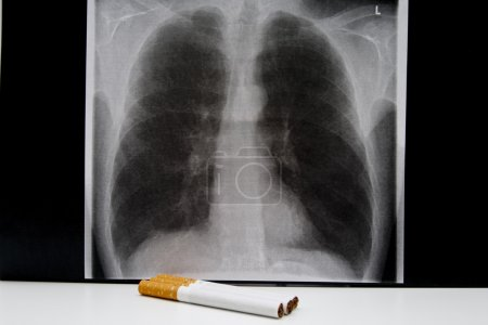 Image of a smoker lung