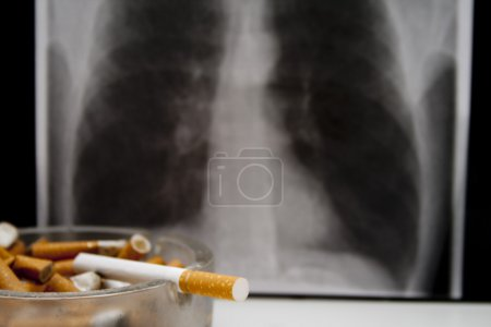 X-ray picture of a smoker lung